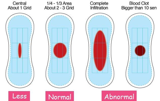 Large blood clots in period